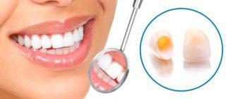 Какие коронки на зубы лучше