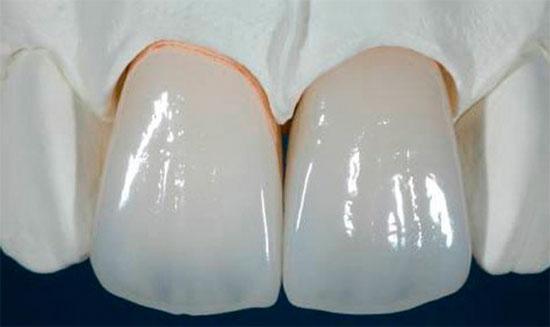 Металлокерамические коронки