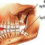 Сколько зубов мудрости у человека — опрос