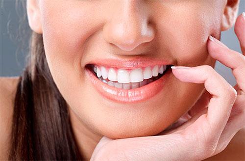 Реставрация зубов винирами. Плюсы и минусы