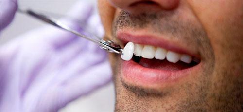 Виниры на зубы: что это такое и какие лучше
