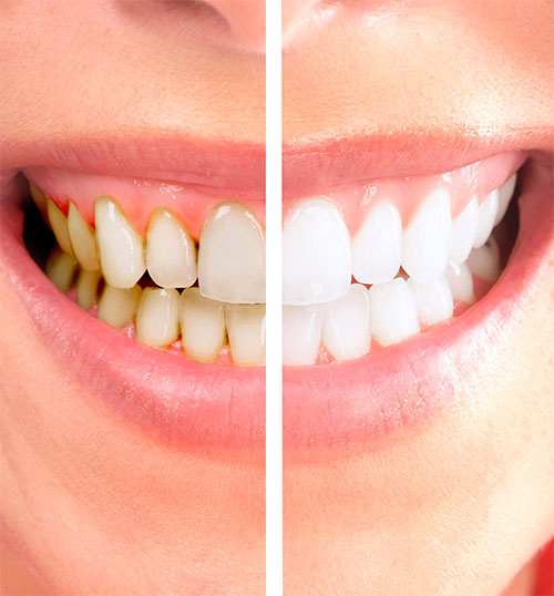 Система отбеливания зубов Zoom 4