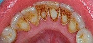Коричневый налет на зубах: причины и как избавиться