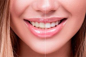 Отбеливание зубов Amazing White в Москве, цены на Amazing White отбеливание – Стоматологический центр Дент-ИСТ