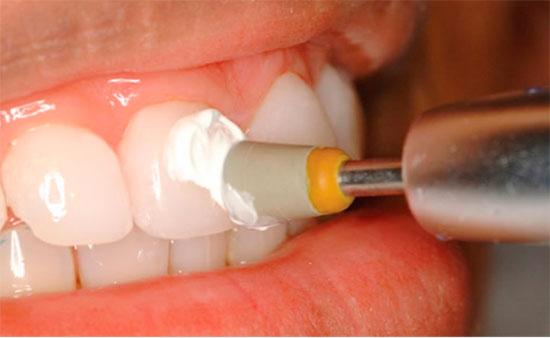 Как устанавливаются виниры на зубы
