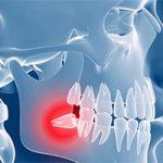 Больно ли удалять зуб мудрости — опрос