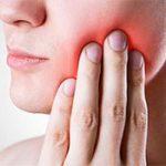 Причины абсцесса зуба и его лечение