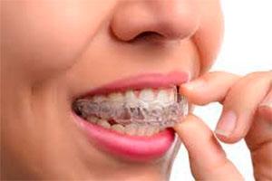 Как выровнять зубы без брекетов