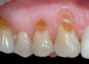 Причины и лечение клиновидного дефекта зубов