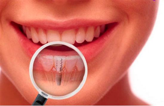 Приживаются ли зубные импланты