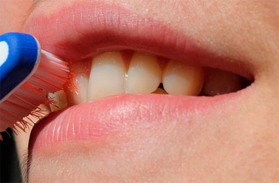 Почему кровоточат десны при чистке зубов и как их вылечить