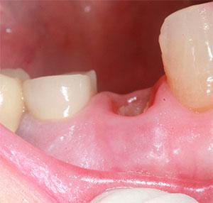 Стадии заживления десны после удаления зуба
