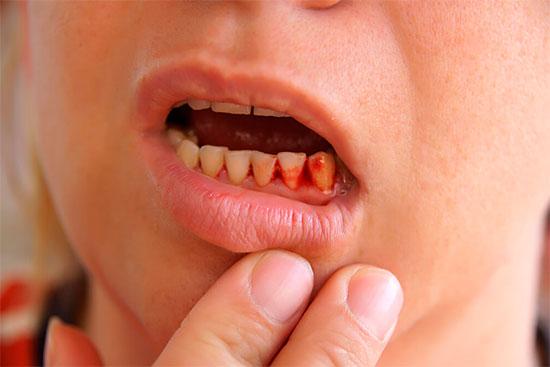 кровоточат десны при чистке зубов и как их вылечить