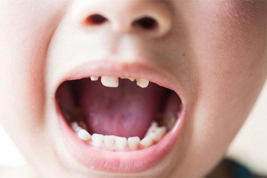 Разрушение эмали и зубов угрожает и детям