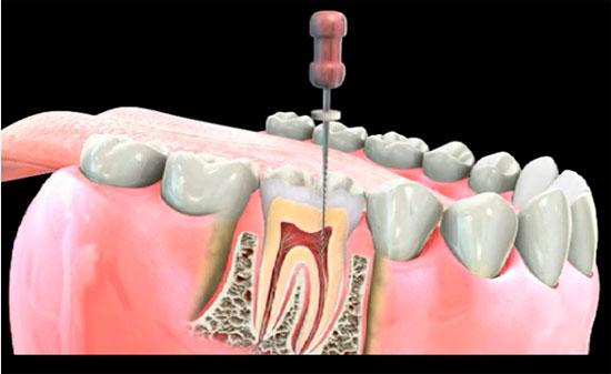 Как делают осложненное пломбирование зубных каналов