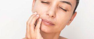 Как снять отек при зубном флюсе