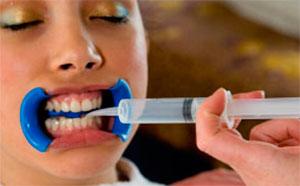 Химическое отбеливание зубов