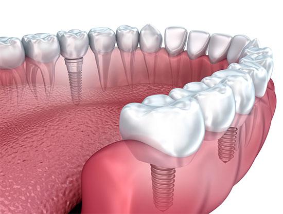 Какие бывают зубные импланты и какие лучше