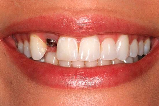 Имплантация не требует обточки зубов