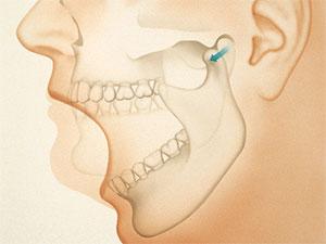 Диагностика щелканья челюсти при открытии рта