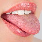 Кандидоз полости рта у взрослых и детей