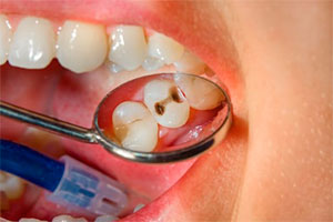 Слабые места на зубах и кариес