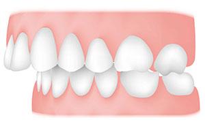 Виды прикуса, которые в стоматологии считаются неправильными