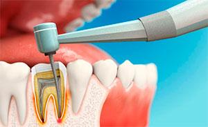 Стоит ли удалять нервы из зубов