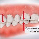 Виды прикуса в стоматологии