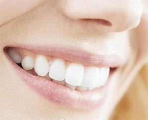 Химическое отбеливание зубов - разновидности методов