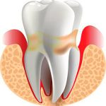 Лечение хронического периодонтита зуба