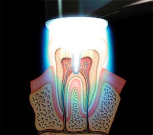 Что такое световая пломба