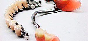 Бюгельные зубные протезы - конструкция