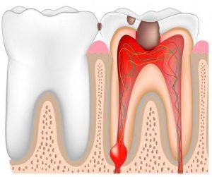 Воспаление зубного нерва: симптомы и признаки