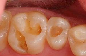 Причины разрушения зубов и эмали