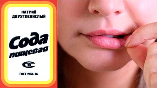 Лечение содой при стоматите для взрослых и детей