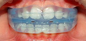 Как выровнять зубы без брекетов - Трейнер