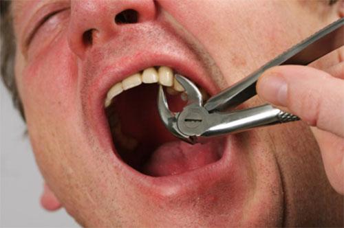 Больно ли вырывать зуб