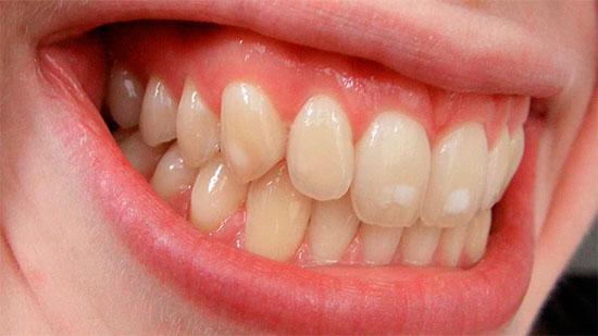 Причины белых пятен на зубах и способы их лечения