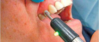 Показания к эндодонтическому лечению зубов