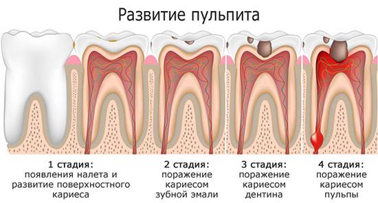 Формы пульпита зуба