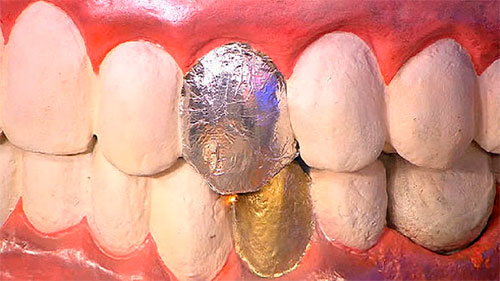 Соприкосновение коронок из разных металлов