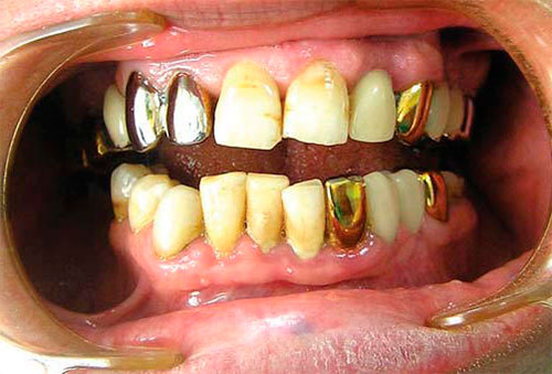 Гальваноз полости рта: диагностика, симптомы, лечение