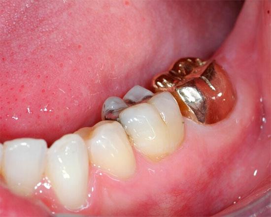 Штампованные и цельнолитые несъемные зубные протезы