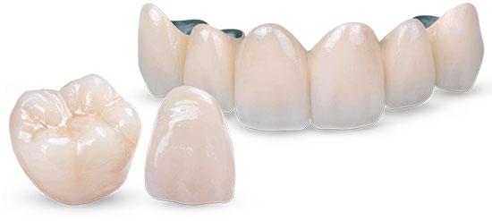 Металлокерамические и керамические несъемные протезы