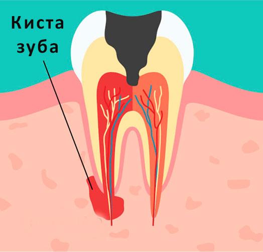 Киста зуба: симптомы и лечение