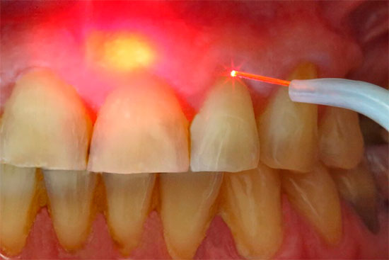 Лазерное удаление кисты зуба