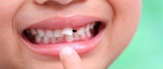 Есть ли нервы в молочных зубах