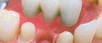 Несъемные мостовидные зубные протезы
