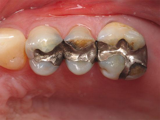 Виды зубных пломб и их различия
